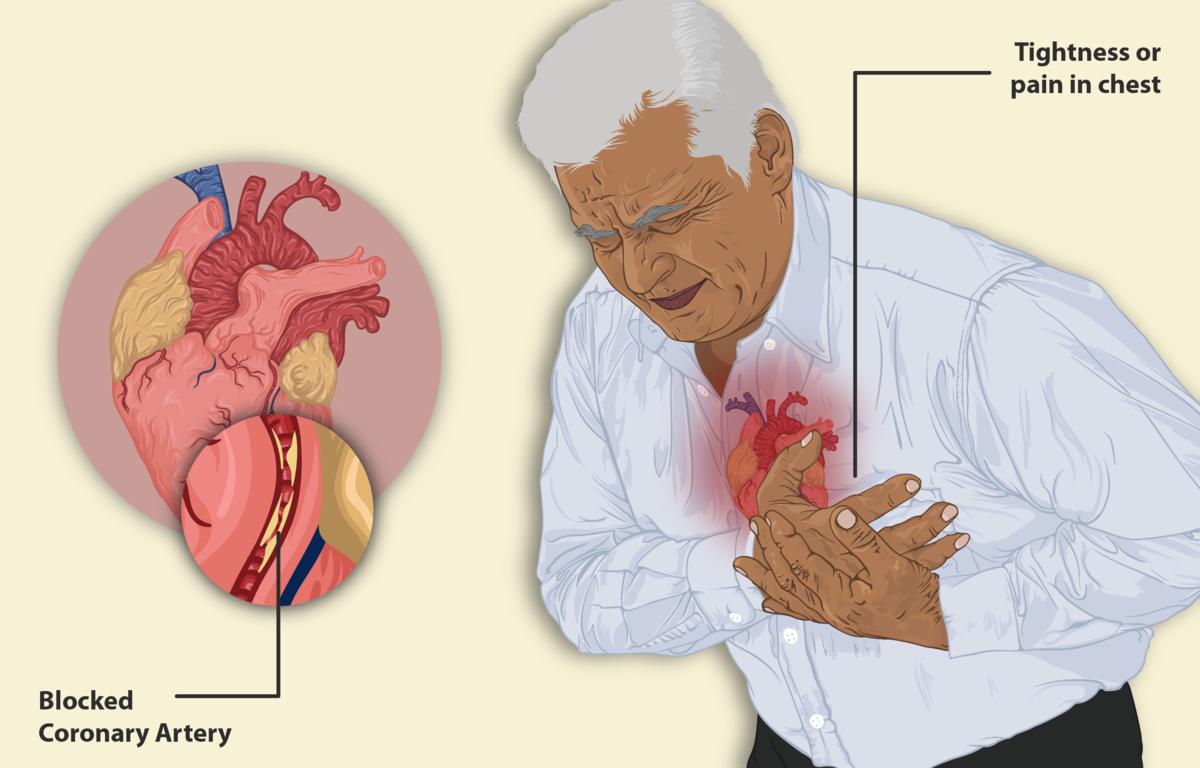Người già với tim mạch